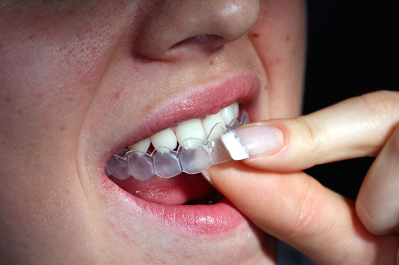 Clareamento Dental - Curiosidades