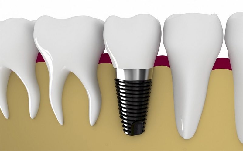 Verdades e mentiras sobre implantes dentários